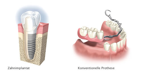 Dental implant (left), conventional denture (right)